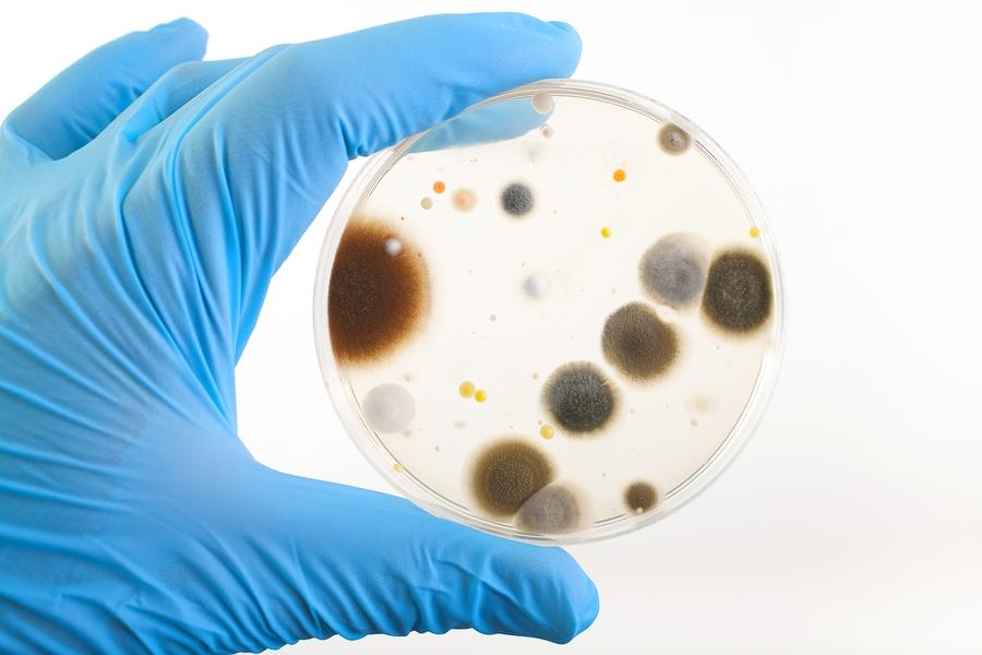 Hand Holding Petri Dish
